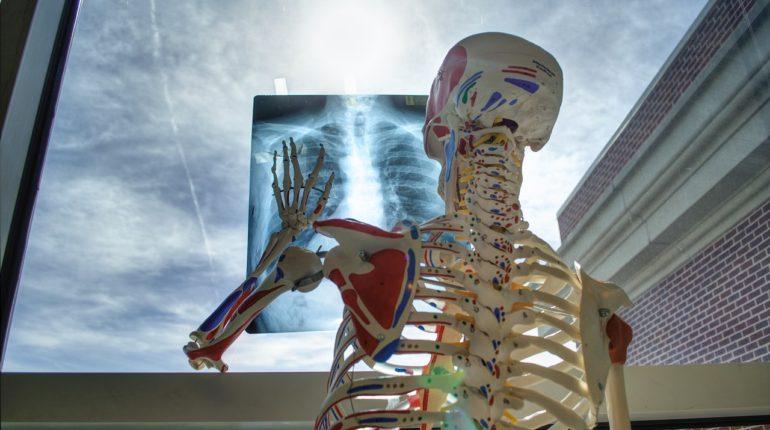szkielet-ortopeda